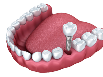 dental implants southern pines, nc